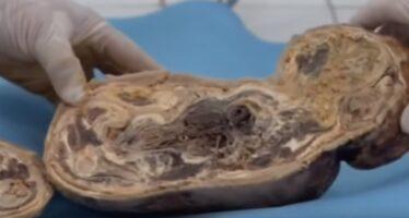 ŠOKEERIV! Naine põgeneb rasedana haiglast ja naaseb alles 46 aastat hiljem – arstidele avaneb täiesti uskumatu vaatepilt! + Dokumentaal VIDEO!