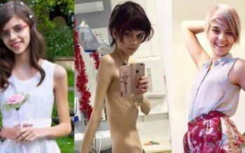 TEEKOND ühest äärmusest teise: Connie Inglis seljatas anoreksia ja on elu üle tänulik. Tema uus ILUIDEAAL on kurvikas keha